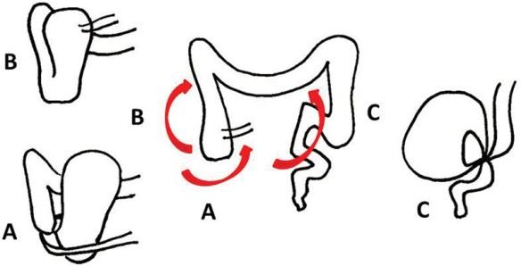 Cecal sigmoid volvulus