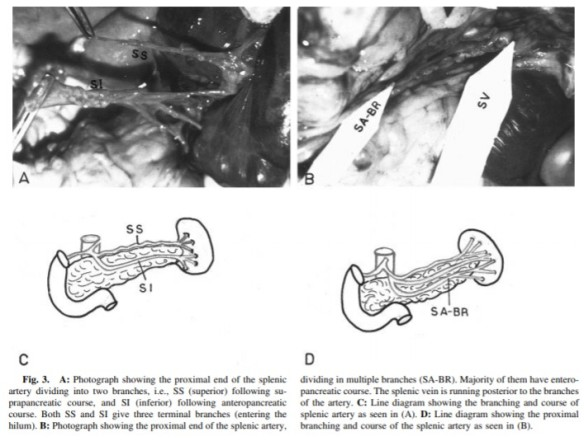 anatomy splenic artery